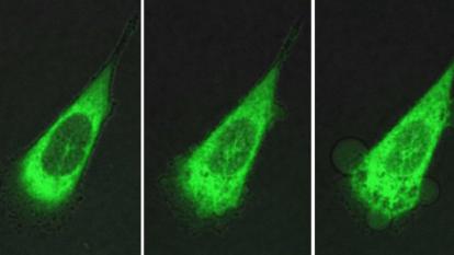圖為 10 分鐘內人類前列腺癌細胞被奈米機器人攻擊的過程,Photo Credit: Durham University