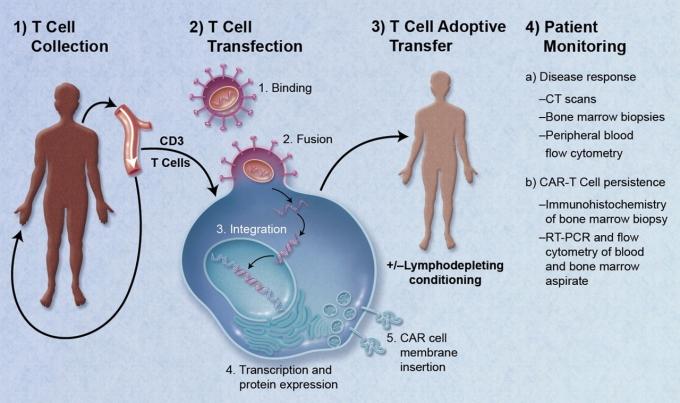 CART-T療法        (圖取自淋巴癌協會)