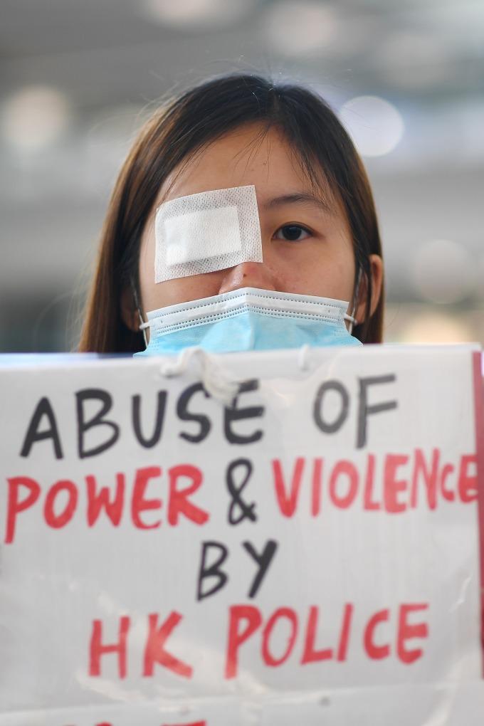 香港網友發起「警察還眼」行動,由於一名女子右眼中彈,引發香港民眾震怒,警民衝突加劇。(圖片:AFP)