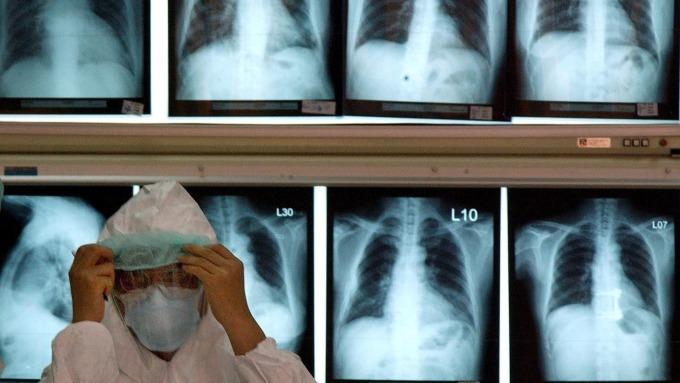 台灣境內出現首例境外移入 2019 新型冠狀病毒,55 歲台籍女性確診。(圖:AFP)