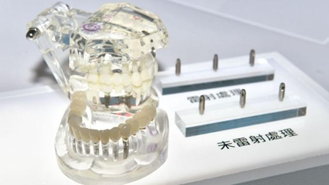 達慶從原本的螺絲產業跨足人工牙根的開發,提升產品附加價值。(圖:工業技術資訊月刊)