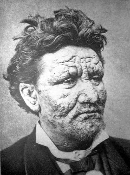麻風病會傷及顏面、皮膚,嚴重者可能引發潰爛,自古以來即受到強烈排斥。中國實施大規模隔離,為避免民眾反彈,麻風聚落通常安排在高山上、山谷中,與世隔離,讓消除汙名變得更加困難。圖片為感染麻風病的患者,皮膚明顯受損。 圖片來源│維基百科