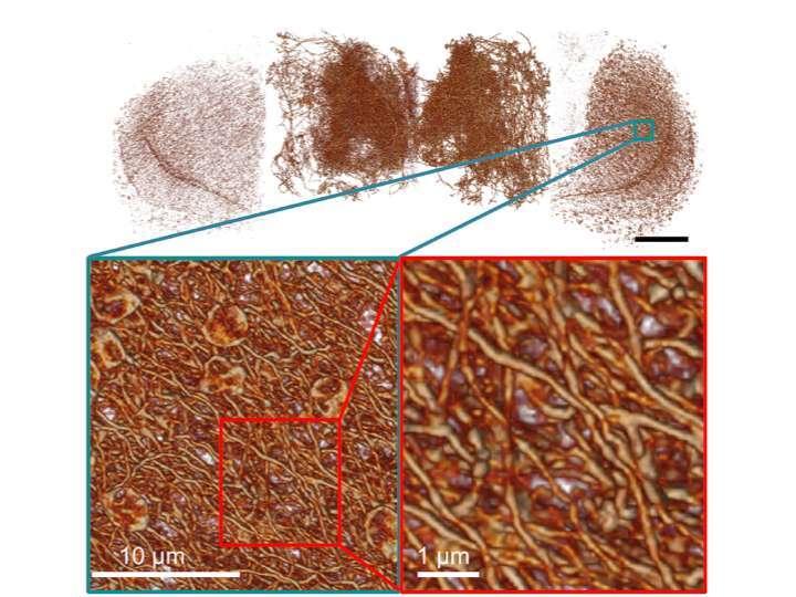 果蠅全腦多巴胺神經多尺度圖像 (上),細部的神經結構 (左下),以及放大展現出非常複雜、但可經由新顯微術辨識的神經網路 (右下)。 圖片來源│陳壁彰