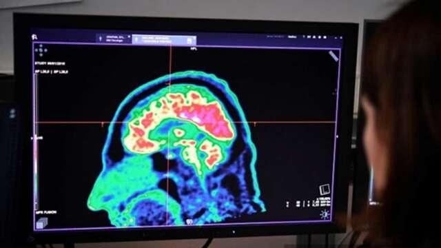 〈研之有物〉「看見」大腦記憶的生成—超解析3D層光定位顯微鏡。(圖:AFP)