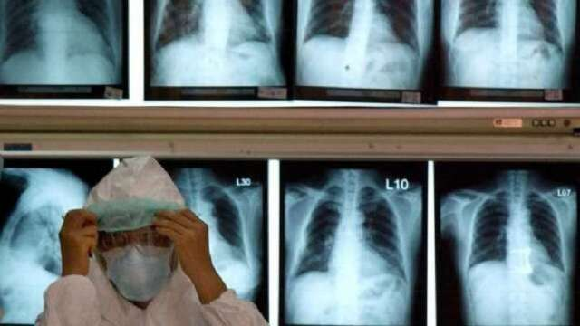 新冠肺炎疫情更新:巴西總統確診 新冠肺炎空氣傳感風險恐增加(圖片:AFP)