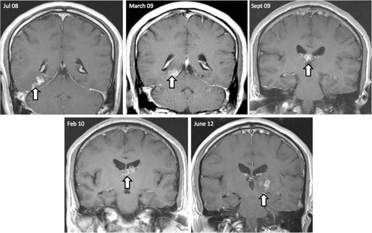 Biogen 認為腦中的堆疊沈積是造成失智和認知功能障礙的主因,本圖為示意圖。(圖片:AFP)