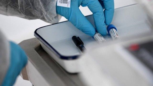 合一新冠新藥完成前期開發 最快明年上半年啟動人體臨床。(圖:AFP)